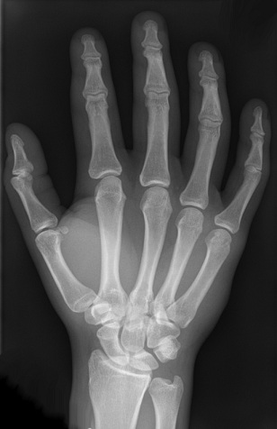 Difference Between X-Rays and Gamma Rays - Hand_X-Ray