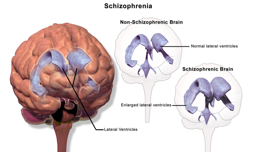 Difference Between Schizophrenia and Schizoaffective Disorder