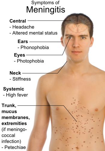 Difference Between Meningitis and Encephalitis