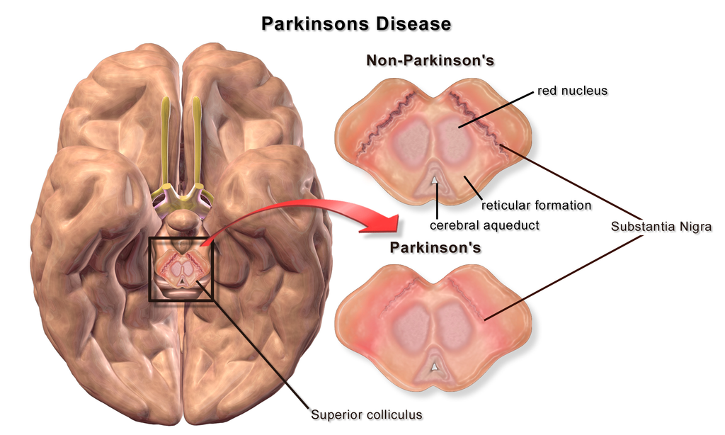 the clinical description of parkinsons disease Nosological diagnosis of parkinsonism was made using clinical diagnostic criteria of the bank of the brain of parkinson's disease society of great britain that was differentiated, if necessary, using structural neuroimaging studies (ct, mri of the brain.