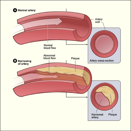 Difference Between Atherosclerosis and Thrombosis