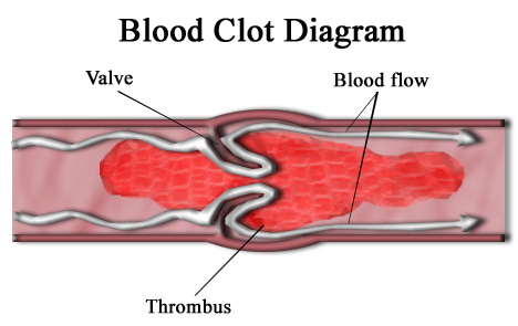 difference between atherosclerosis and thrombosis | causes, Cephalic Vein
