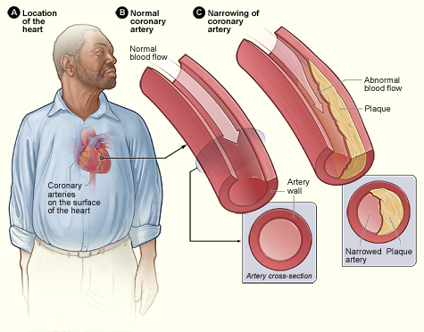Difference Between Cardiovascular Disease and Coronary Heart Disease