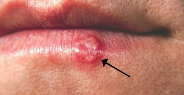 Difference Between Cold Sore and Canker Sore - 1
