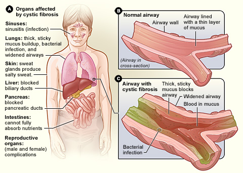 Difference Between Fibrosis and Cirrhosis