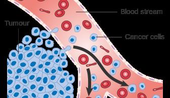 How Do Cancer Cells Spread