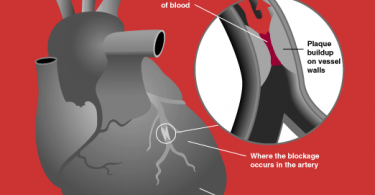 What Happens During a Heart Attack