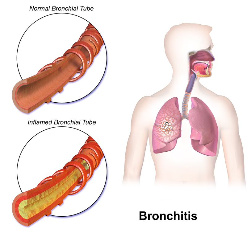 bronchitis asthma Bronchitis affects the lungs and is caused by the inflammation or infection of the lining of the bronchial tubes that carry air into the lungs however, a cough that refuses to go away could also be a sign of another illness such as asthma or pneumonia bronchitis may be acute or chronic.