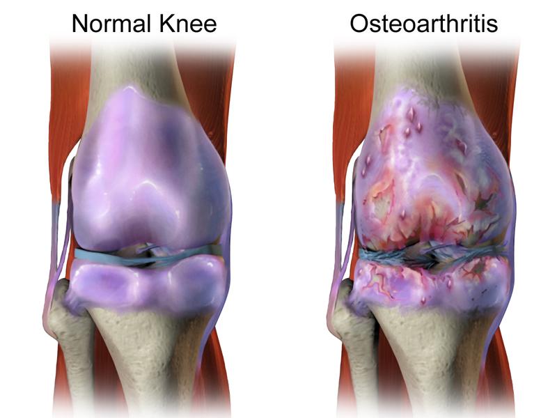 Difference Between Osteoarthritis and Rheumatoid Arthritis