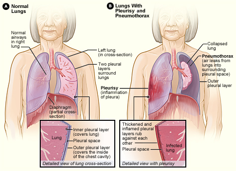 difference between pneumonia and pleurisy definition cause risk factors signs and symptoms. Black Bedroom Furniture Sets. Home Design Ideas