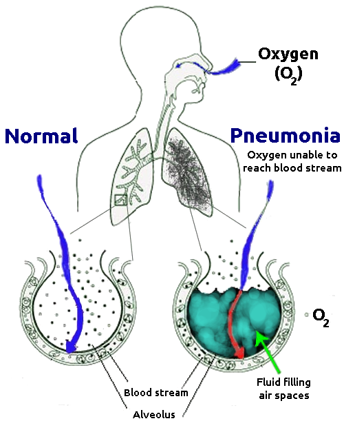 Difference Between Pneumonia And Pleurisy  Definition. How To Begin Trading Stocks Cnn Time Warner. Convenience Store Inventory Zip Line Plans. Average Motorcycle Insurance Rate. Schools Of Anthropology U S Foundation Repair. Electronic Board Meetings Contract Life Cycle. Uva Executive Education Shave Hair For Cancer. Orthodontist Henderson Nv Pest Spray For Home. Drugs Used For Bipolar Disorder