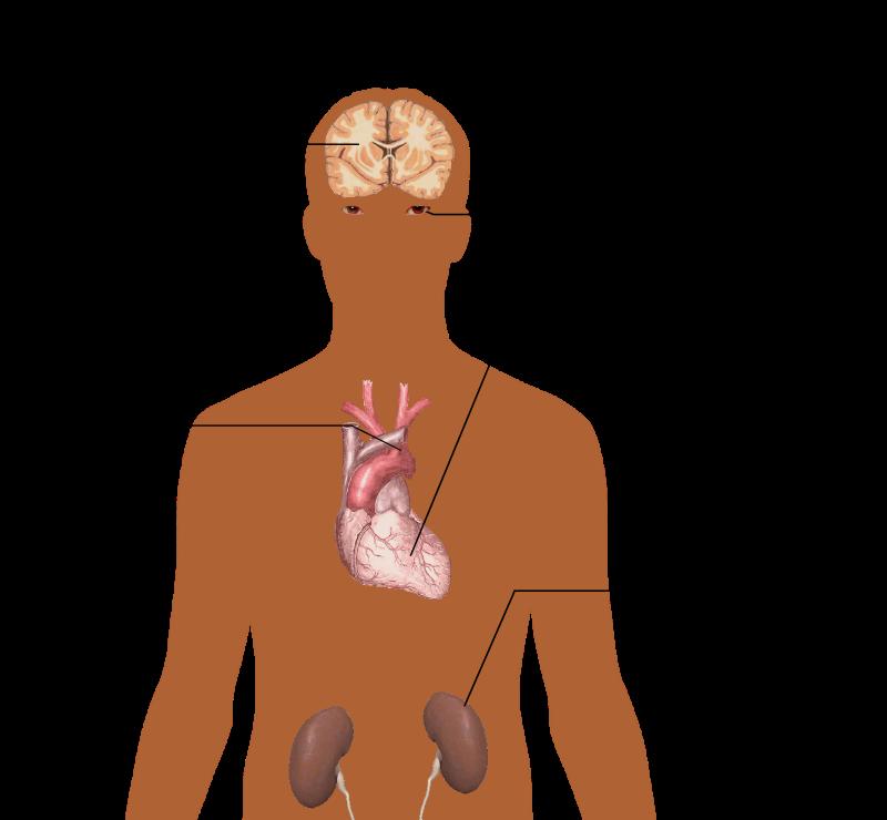 Main Difference -  Pulmonary Hypertension vs  Hypertension