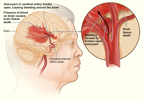 Difference Between Stroke and TIA