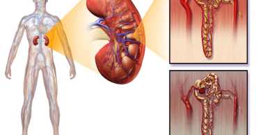 How Does Diabetes Affect the Kidneys