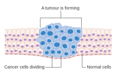 Main Difference - Cyst vs Tumor