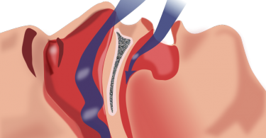 Difference Between Narcolepsy and Sleep Apnea