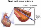 Difference Between Stent and Catheter