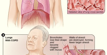 What is COPD and What Causes It