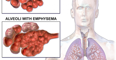 What is Emphysema and How is it Treated