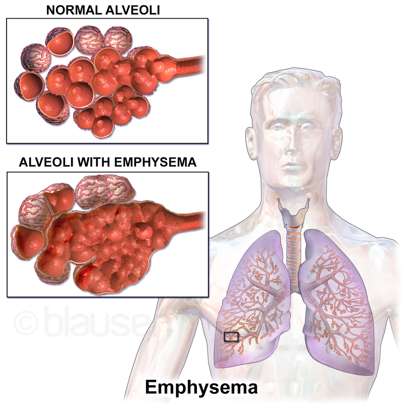 Image result for Emphysema