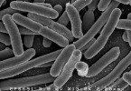 Difference Between E Coli and Klebsiella Pneumoniae