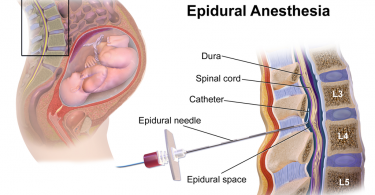 Difference Between Spinal and Epidural Anesthesia