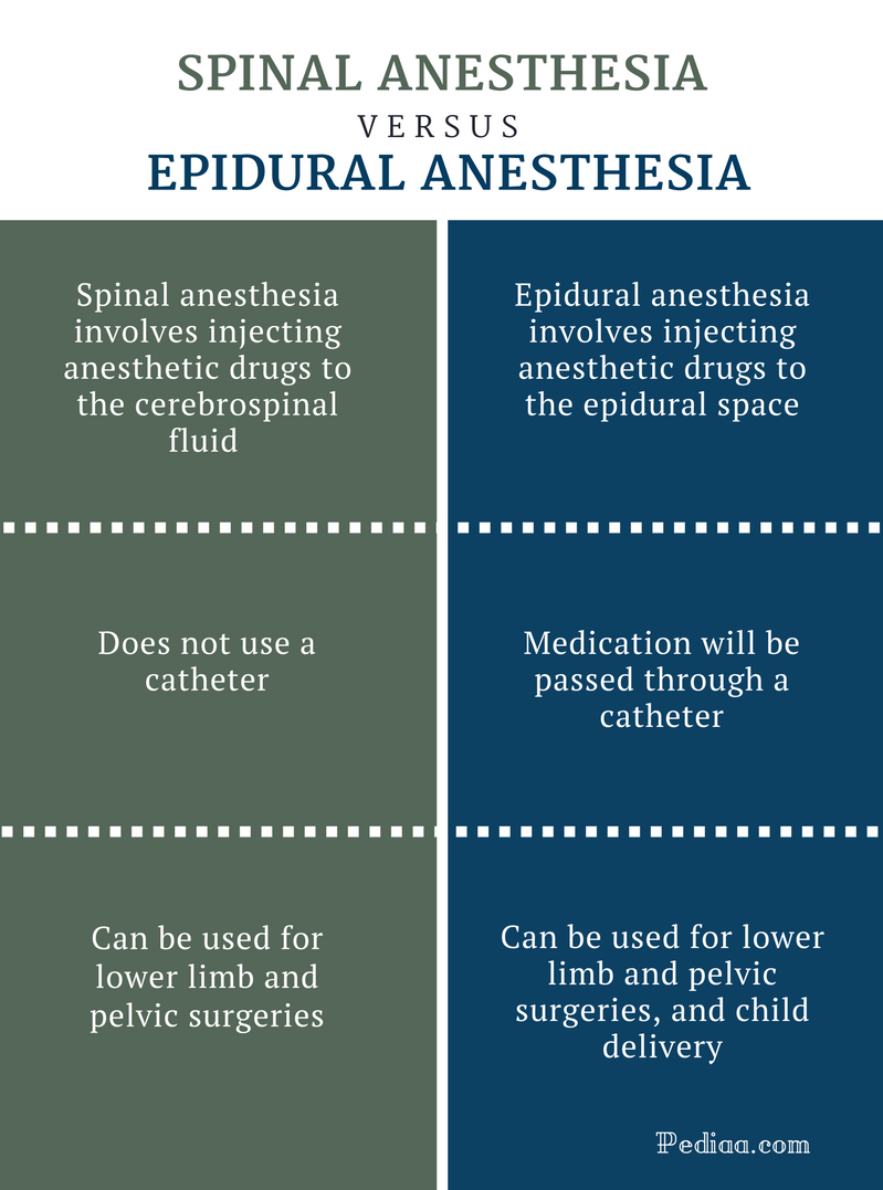 Difference Between Spinal and Epidural Anesthesia - Comparision Summary