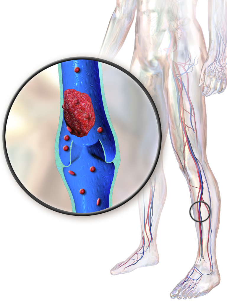 What Causes Deep Vein Thrombosis