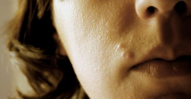 Difference Between Zit and Pimple