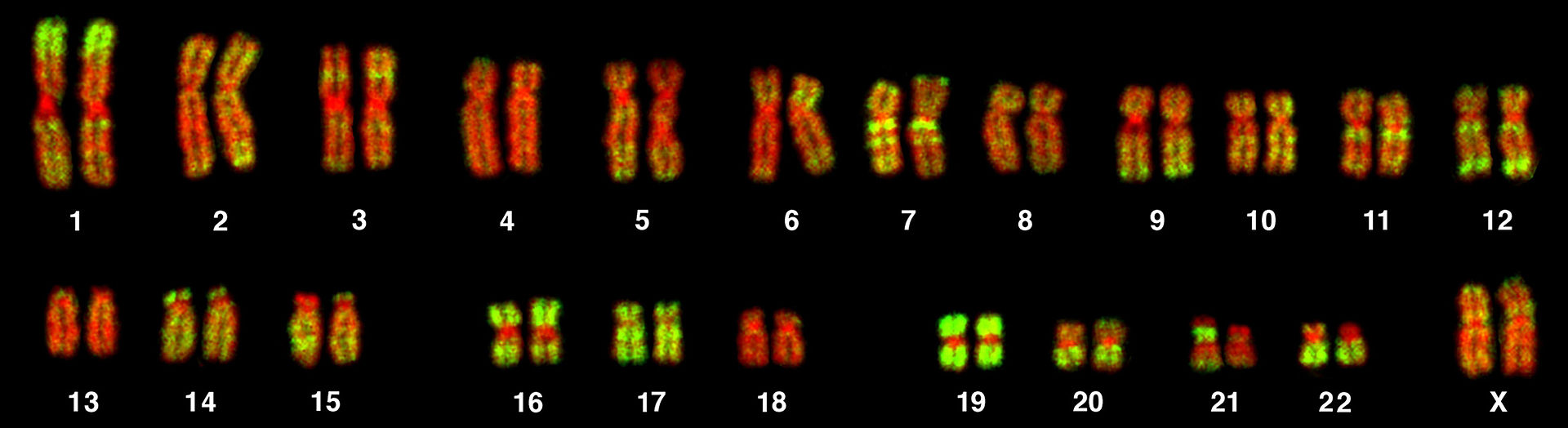 Difference Between Homologous Chromosomes and Sister Chromatids