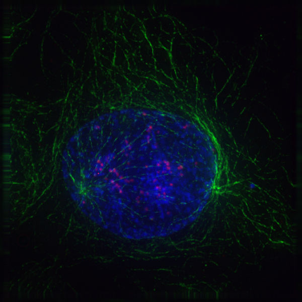What are the Stages of Mitosis_Image of Early Prophase Cell