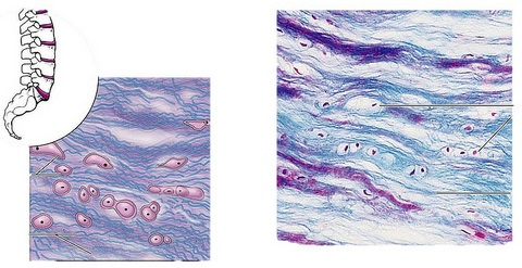 Difference Between Fibrocartilage And Hyaline Cartilage