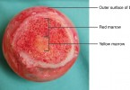 Difference Between Red and Yellow Bone Marrow