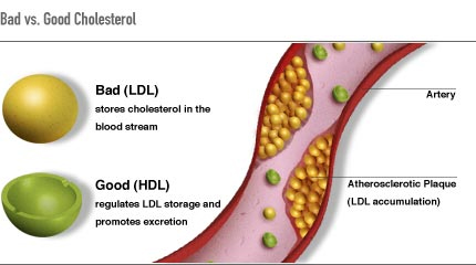 Difference Between Good and Bad Cholesterol