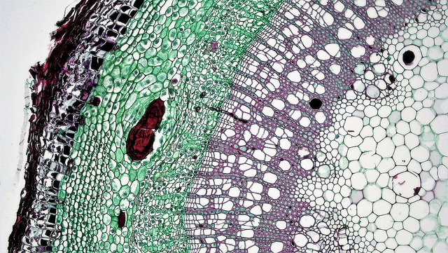 Difference Between Epidermal and Cork Cells
