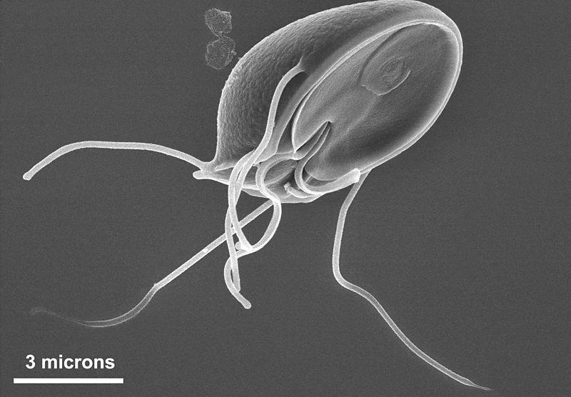 Main Difference - Protozoa vs Algae