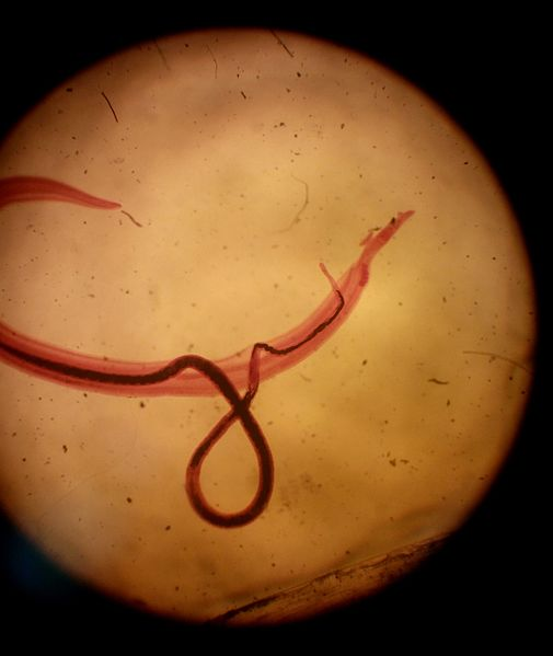 Difference Between Ectoparasite and Endoparasite