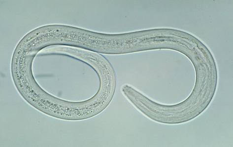 Difference Between Flatworms and Roundworms