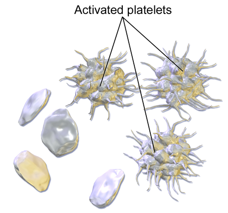 Difference Between Platelets and Plasma