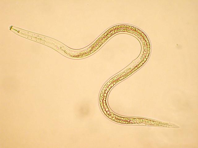 Phylum platyhelminthes nematoda annelida. Perbedaan platyhelminthes nematoda annelida