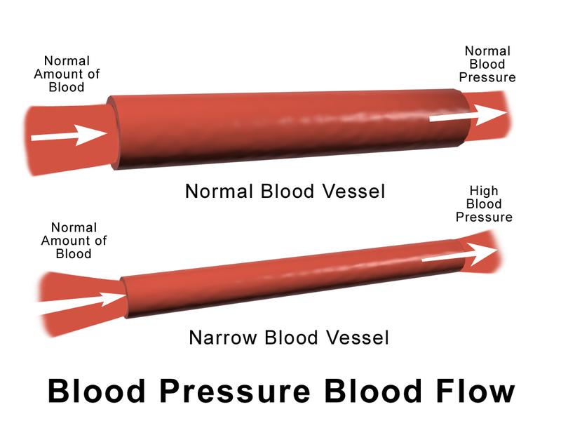 Difference Between Vasodilation and Vasoconstriction