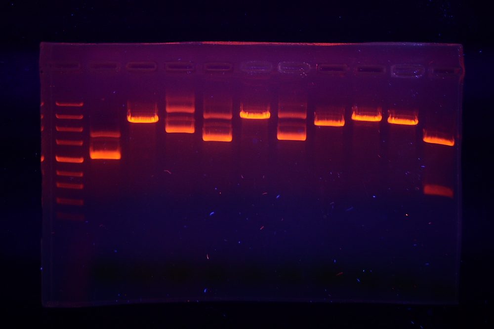 How Does Gel Electrophoresis Separate DNA Fragments_Figure 1