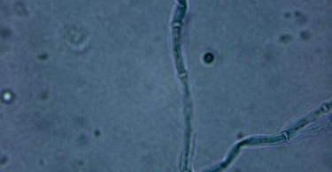 Main Difference - Aspergillus vs Penicillium