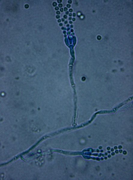 Main Difference - Aspergillus and Penicillium