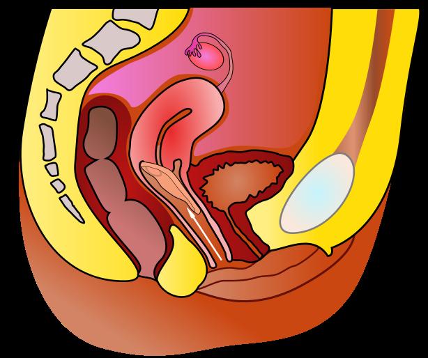 Main Difference - Cervical Cap vs Diaphragm