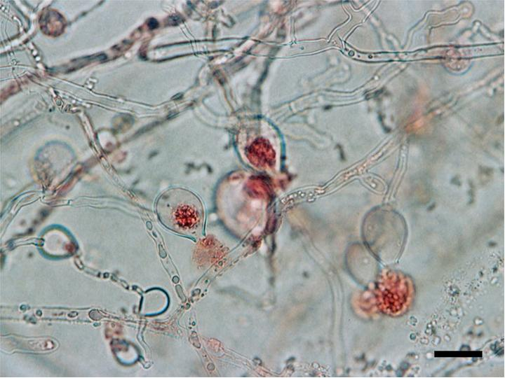 Difference Between Zoospore and Zygote
