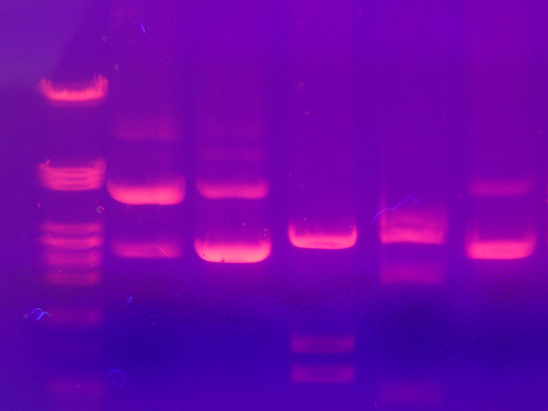 Difference Between Gel Electrophoresis and SDS PAGE