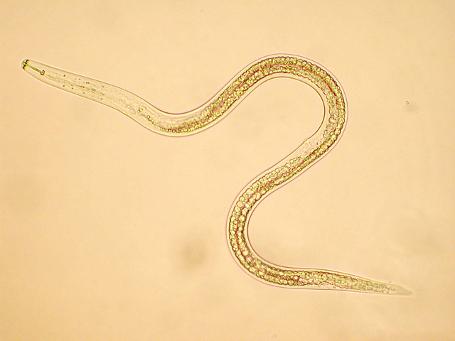 Difference Between Nematoda and Annelida