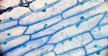 Difference Between Onion Cell and Human Cheek Cell