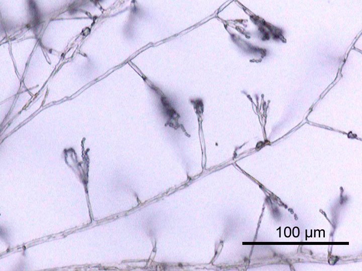 Difference Between Hyphae and Pseudohyphae